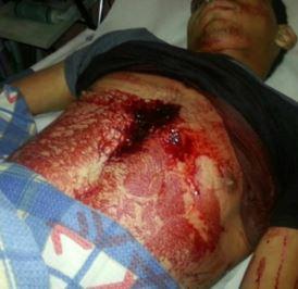 Ayman al-Abbassi vermoord